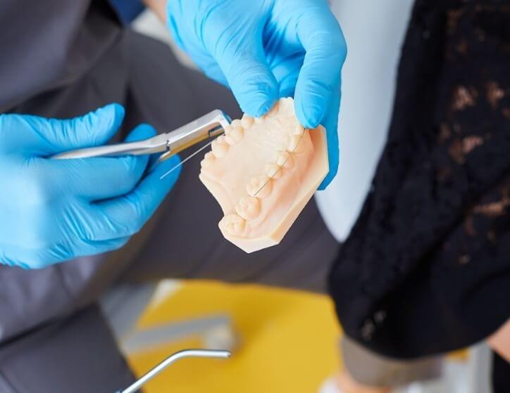 Aparat dentar - Mai mult deact dinti drepti