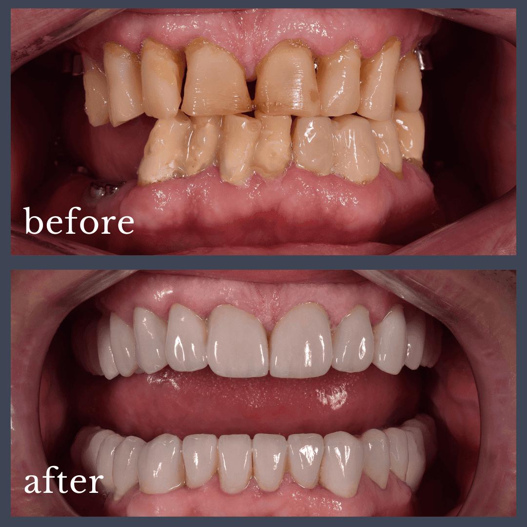 Caz 1 implant dentar