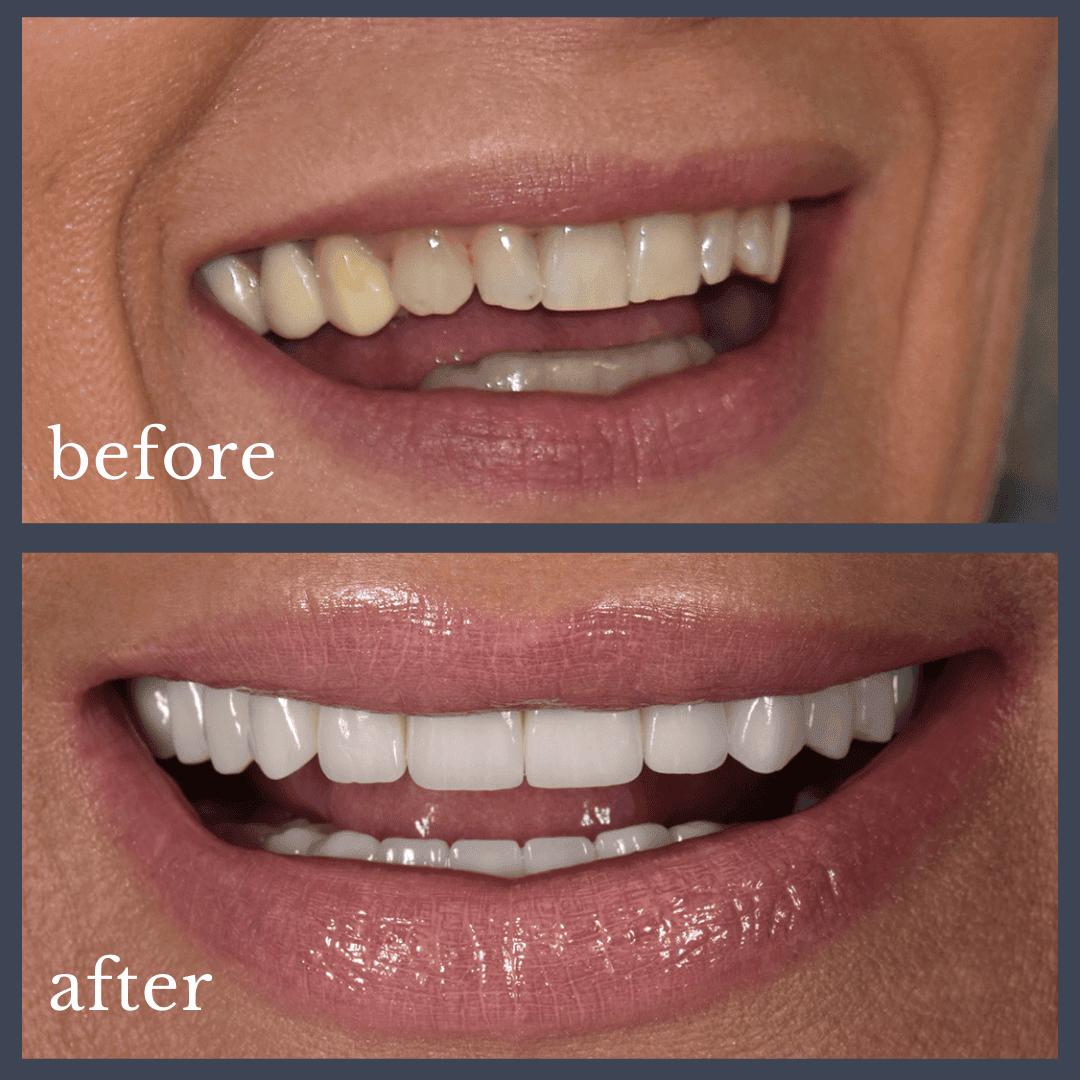 Caz 2 implant dentar