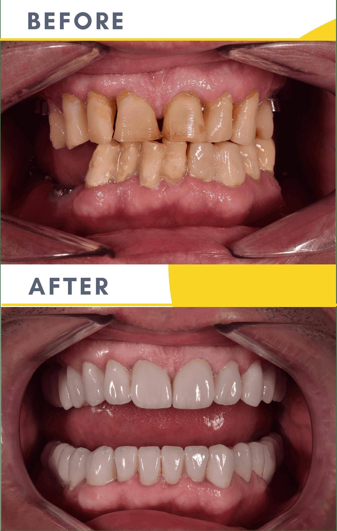 Cazuri Clinica Dentaline
