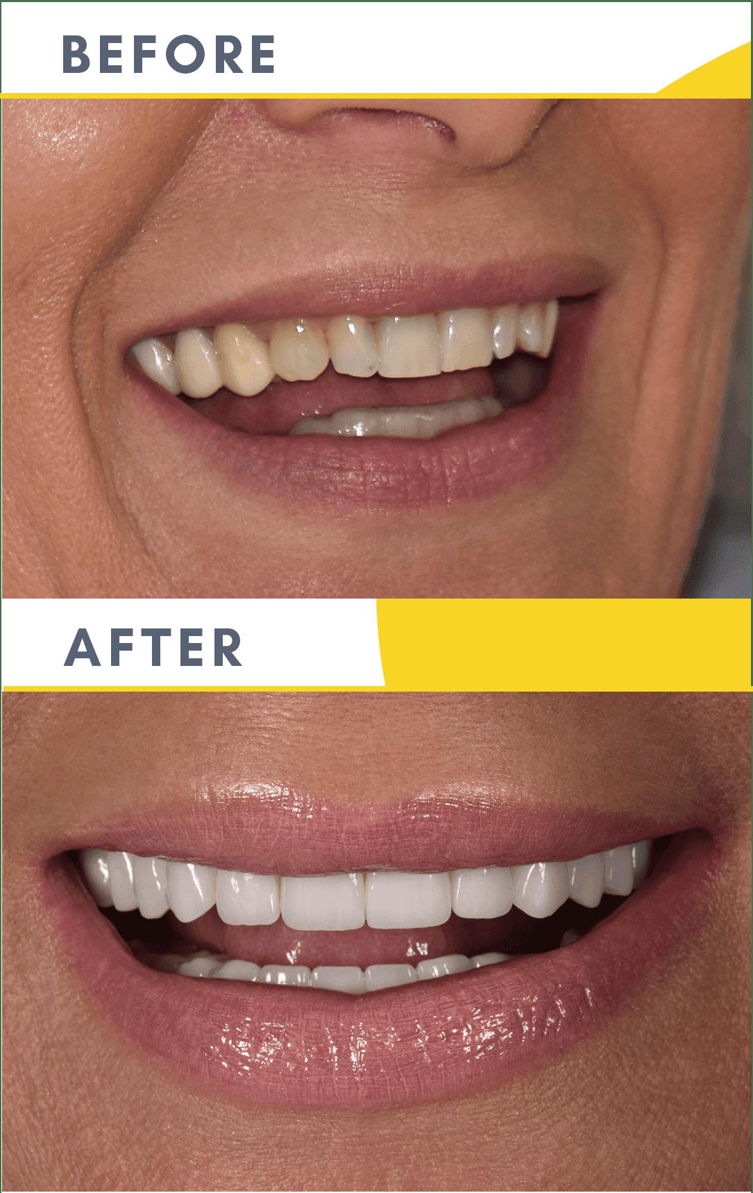 Cazuri Clinica Dentaline Coroane Dentare