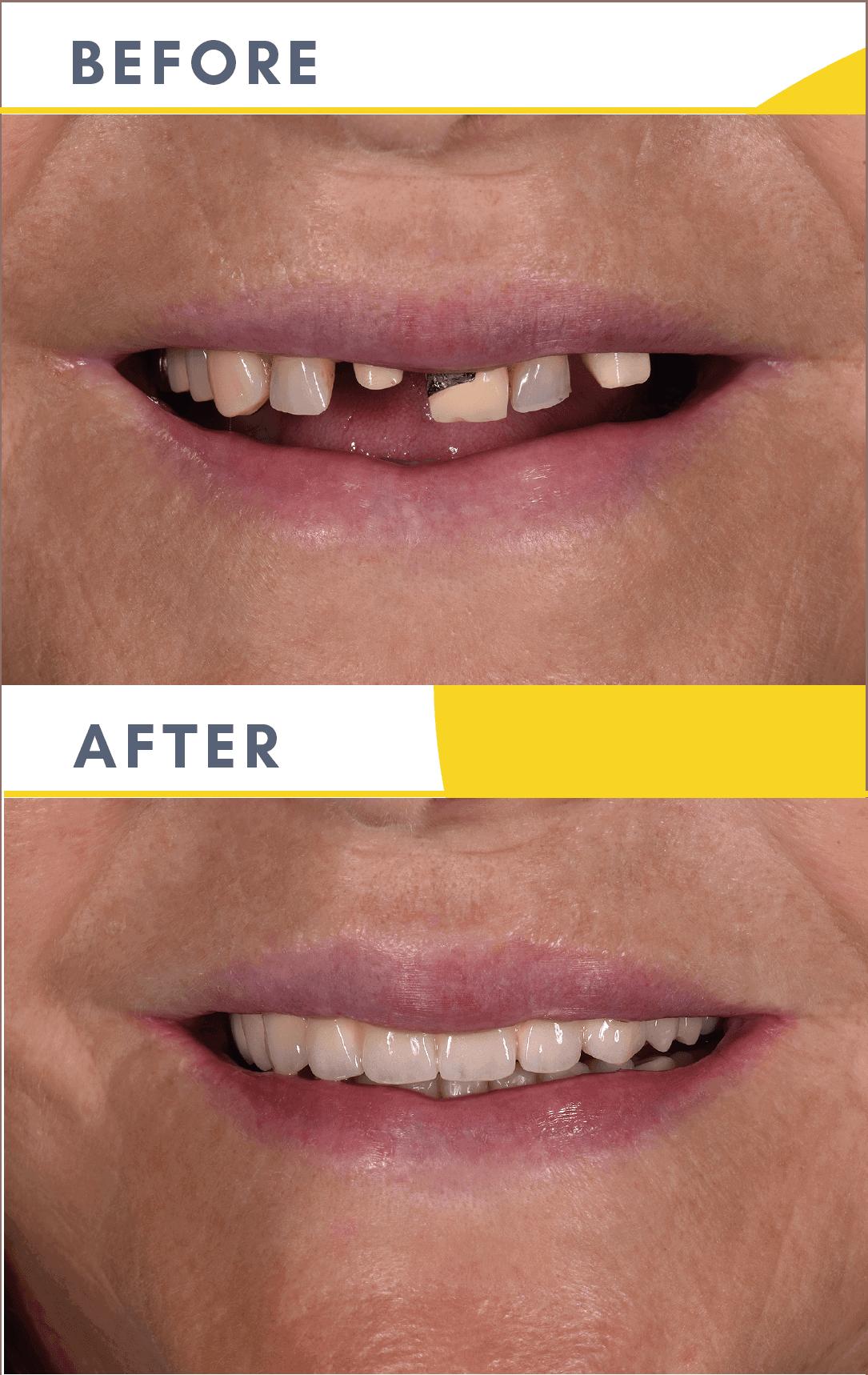 Cazuri Clinica Dentaline Implant Dentar