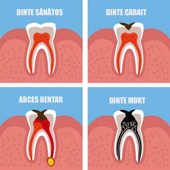 Abces dentar grafic